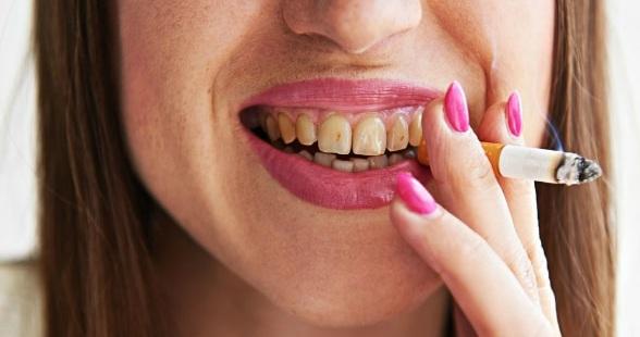 Влияние курения на зубы и десна   Гелиос