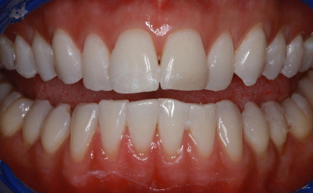 1 60479b5662cc7 - Народный рецепт против зубной боли