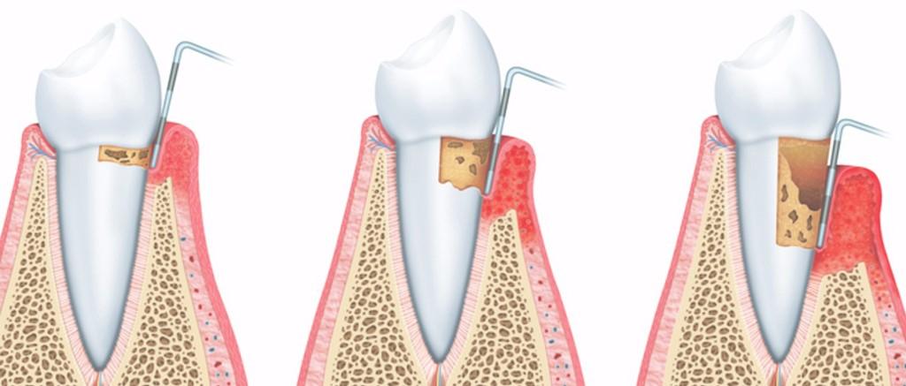 2 - Народный рецепт против зубной боли